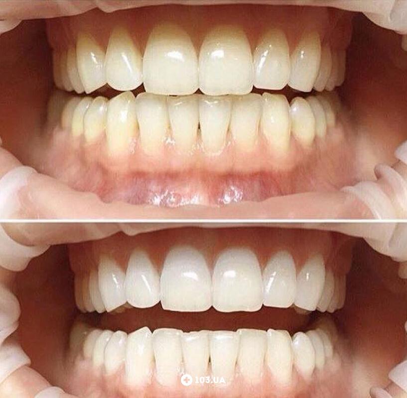 Примеры работ  Стоматология «Чибис» - фото 1602303