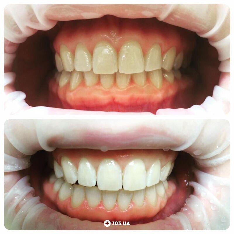 Примеры работ  Стоматология «Чибис» - фото 1602263