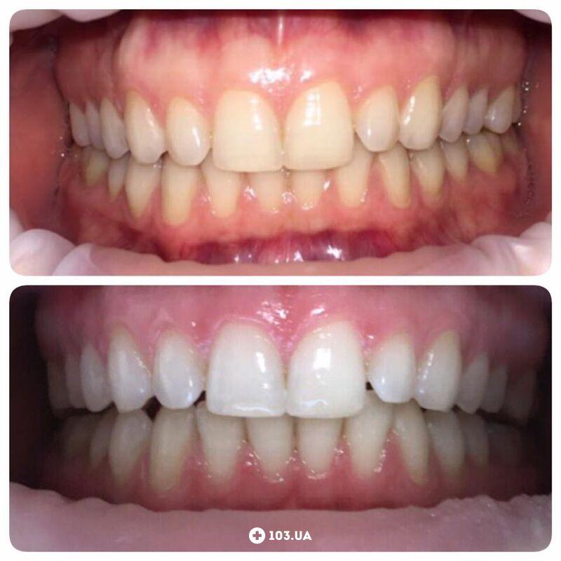 Примеры работ  Стоматология «Чибис» - фото 1602273